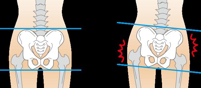 歪み 股関節痛